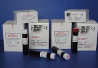Les réagents immunoassay destinés aux analyseurs biochimiques